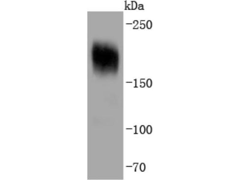 Western Blotting (WB) image for anti-Platelet-Derived Growth Factor Receptor, alpha Polypeptide (PDGFRA) (N-Term) antibody (ABIN5949588)