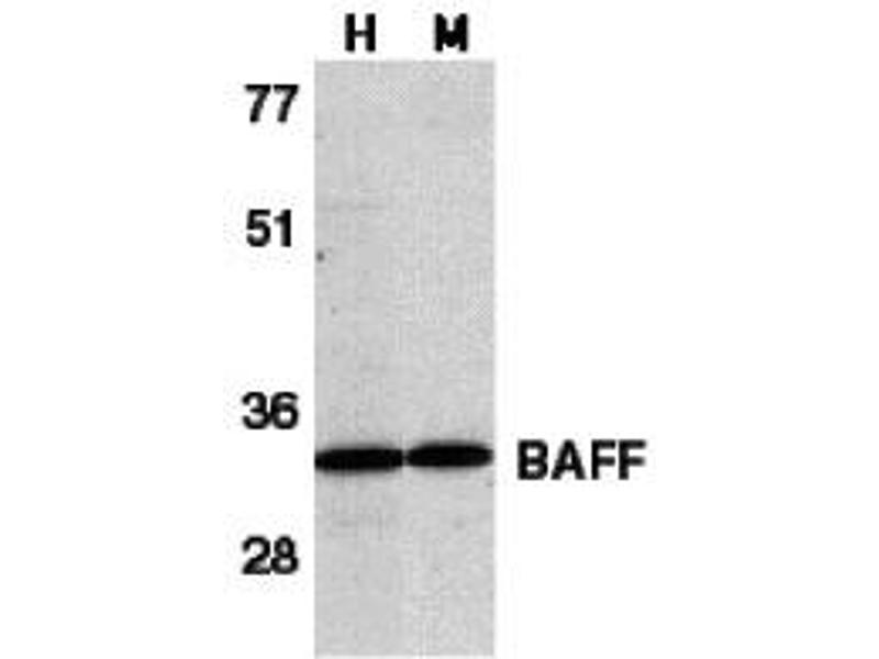 Western Blotting (WB) image for anti-TNFSF13B antibody (Tumor Necrosis Factor (Ligand) Superfamily, Member 13b) (C-Term) (ABIN2156036)
