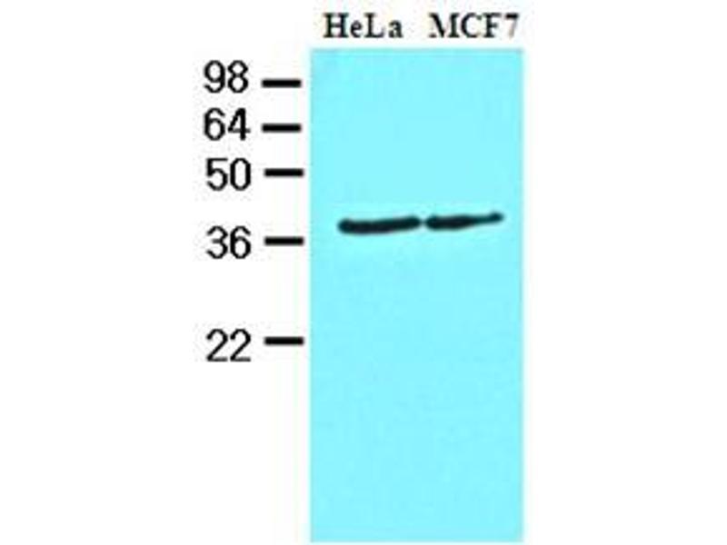 Western Blotting (WB) image for anti-Casein Kinase 1, alpha 1 (CSNK1A1) (AA 1-337), (N-Term) antibody (ABIN371879)
