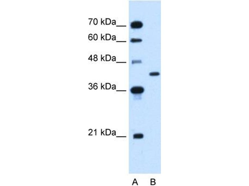Western Blotting (WB) image for anti-Glutamic-Oxaloacetic Transaminase 2, Mitochondrial (Aspartate Aminotransferase 2) (GOT2) (N-Term) antibody (ABIN310472)