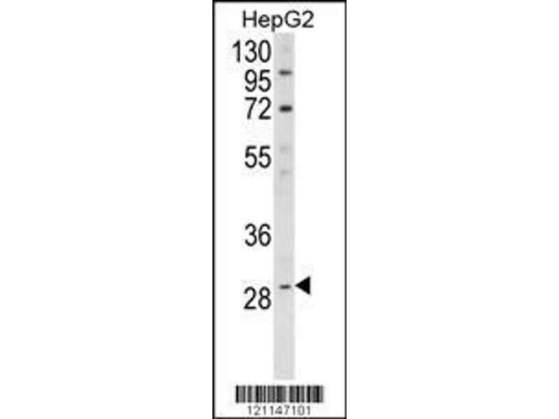Western Blotting (WB) image for anti-Deiodinase, Iodothyronine, Type I (DIO1) (AA 30-57), (N-Term) antibody (ABIN390946)