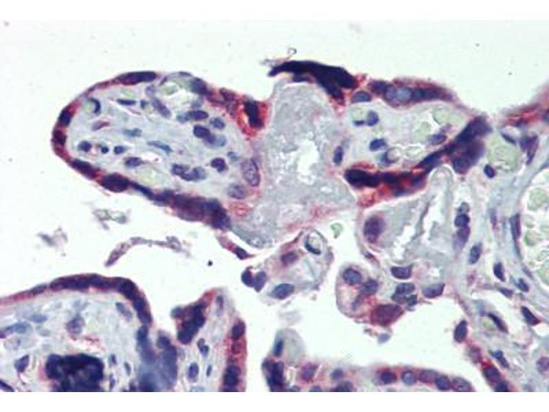 Image no. 3 for anti-AAK1 (C-Term) antibody (ABIN462517)