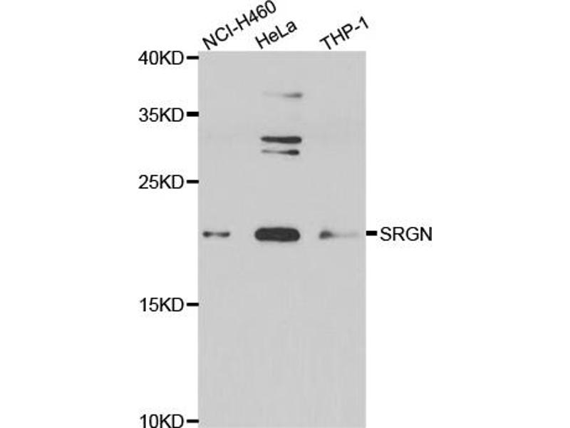 Image no. 2 for anti-serglycin (SRGN) antibody (ABIN6567891)