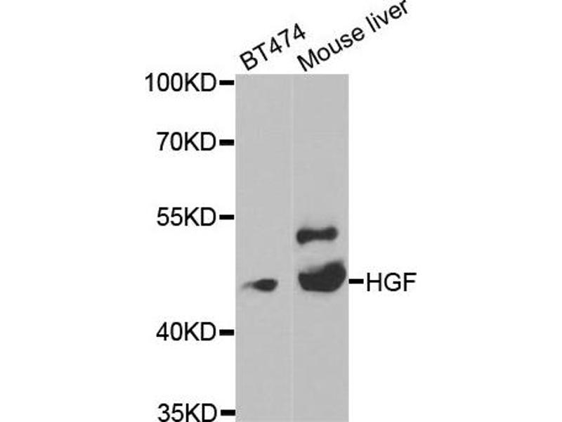 Image no. 2 for anti-Hepatocyte Growth Factor (Hepapoietin A, Scatter Factor) (HGF) antibody (ABIN6666579)
