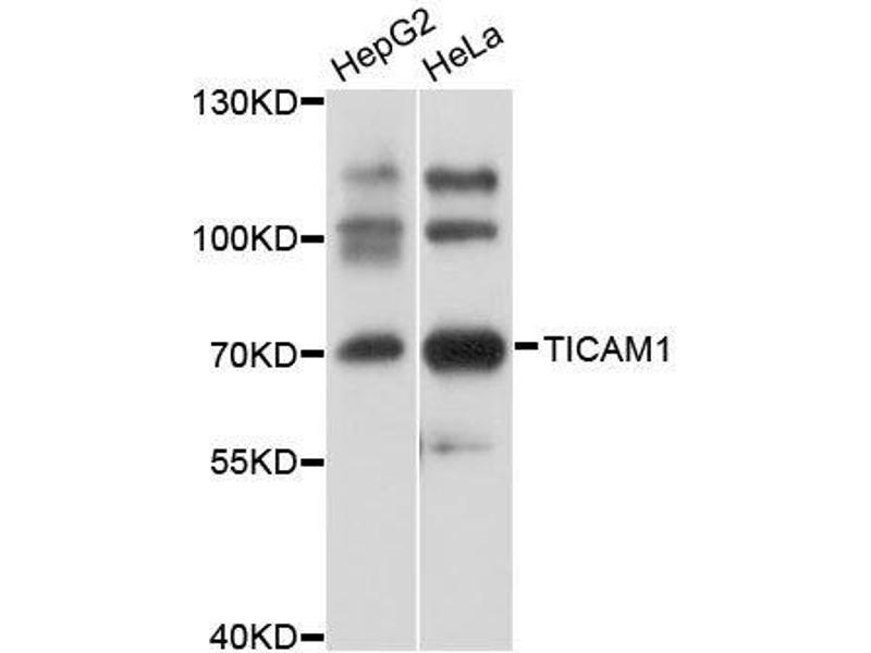 Western Blotting (WB) image for anti-Toll-Like Receptor Adaptor Molecule 1 (TICAM1) antibody (ABIN3021572)