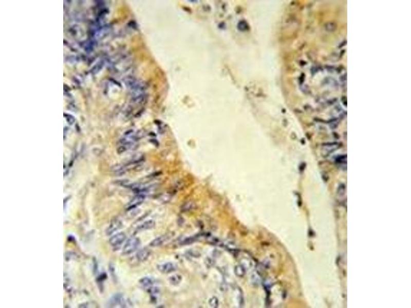 image for anti-Acyl-CoA Dehydrogenase, C-4 To C-12 Straight Chain (ACADM) (AA 196-225) antibody (ABIN452704)