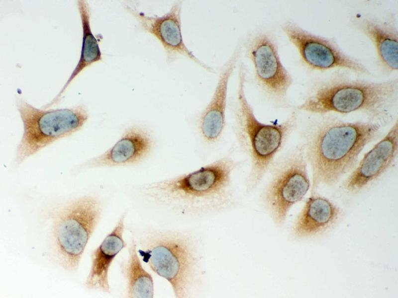 Immunohistochemistry (IHC) image for anti-Nucleotide-Binding Oligomerization Domain Containing 1 (NOD1) (AA 1-160) antibody (ABIN3043890)
