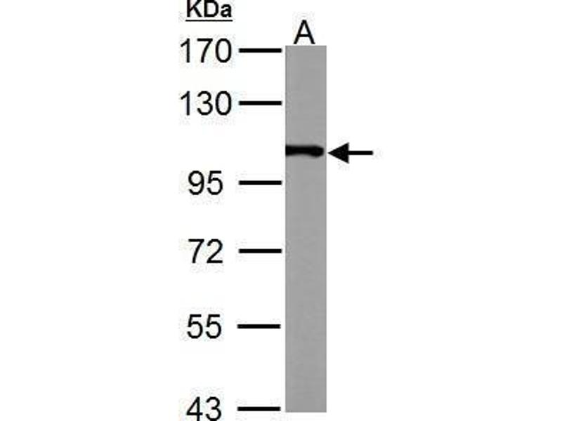 Image no. 3 for anti-Actinin, alpha 4 (ACTN4) (C-Term) antibody (ABIN2855119)