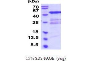 Image no. 1 for Queuine tRNA-Ribosyltransferase 1 (QTRT1) (AA 1-403) protein (His tag) (ABIN6387595)
