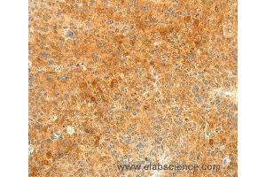 Immunohistochemistry (IHC) image for anti-Suppressor of Cytokine Signaling 6 (SOCS6) antibody (ABIN2422171)