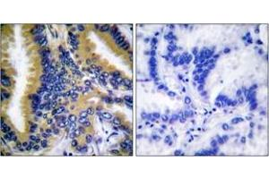 Image no. 2 for anti-BCL2-Interacting Killer (Apoptosis-Inducing) (BIK) (AA 18-67) antibody (ABIN1532228)