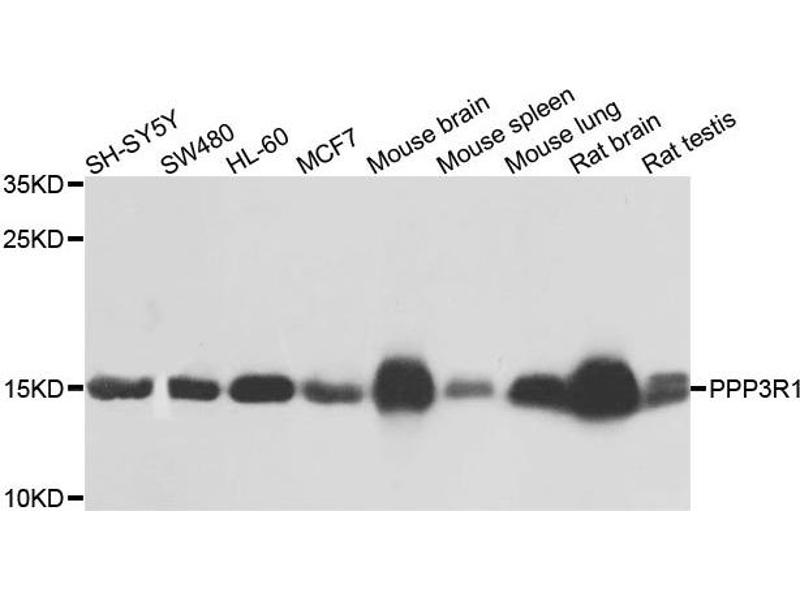 Western Blotting (WB) image for anti-PPP3R1 Antikörper (Protein Phosphatase 3, Regulatory Subunit B, alpha) (ABIN1874237)