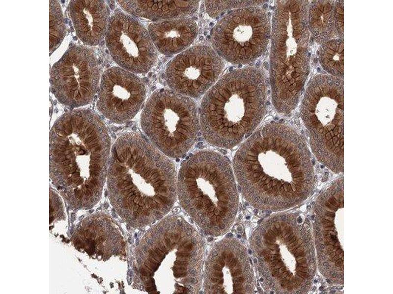 Immunohistochemistry (Paraffin-embedded Sections) (IHC (p)) image for anti-CDC42 Effector Protein (Rho GTPase Binding) 2 (CDC42EP2) antibody (ABIN4296956)