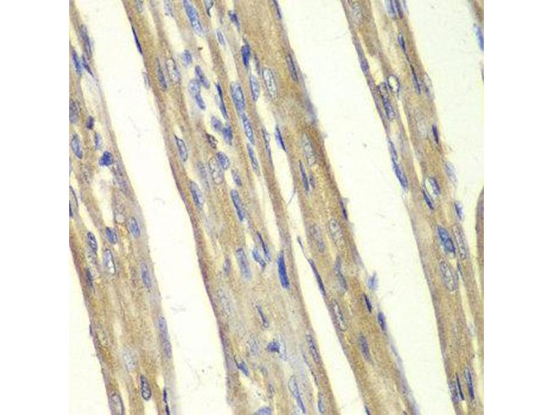 Immunohistochemistry (IHC) image for anti-Caspase 7 antibody (Caspase 7, Apoptosis-Related Cysteine Peptidase) (ABIN1871469)