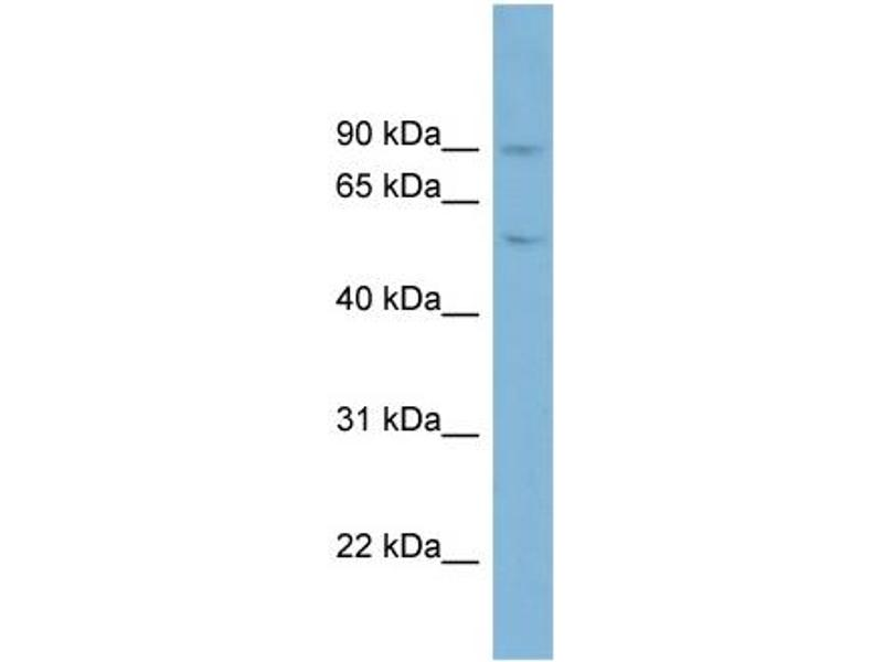 Western Blotting (WB) image for anti-PLG antibody (Plasminogen) (Middle Region) (ABIN2784539)