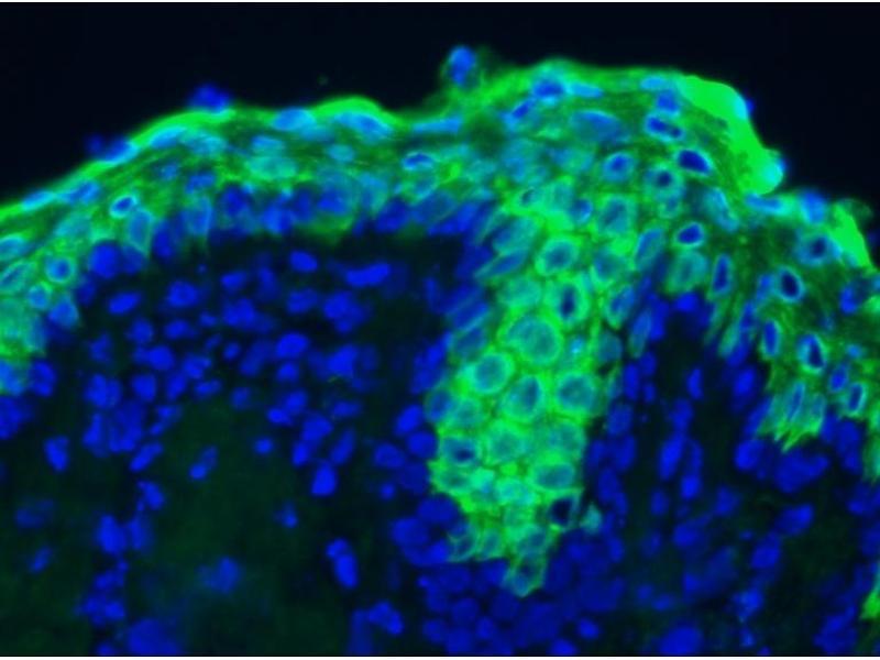 image for anti-Keratin 10 (KRT10) antibody (ABIN335212)