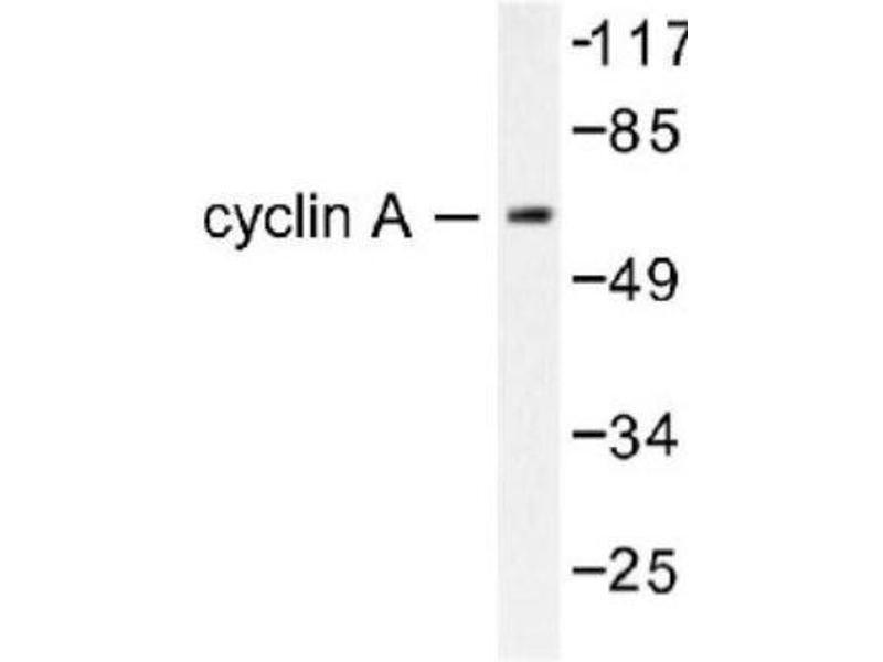 Western Blotting (WB) image for anti-Cyclin A2 (CCNA2) antibody (ABIN4301457)