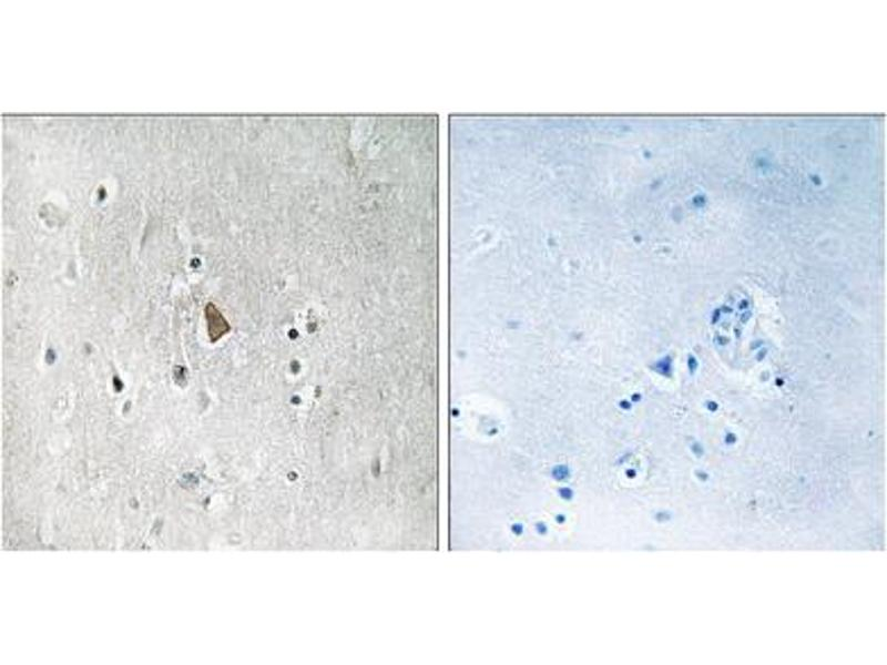 Immunohistochemistry (IHC) image for anti-Insulin-Like Growth Factor 1 Receptor (IGF1R) (pTyr1346) antibody (ABIN1847558)
