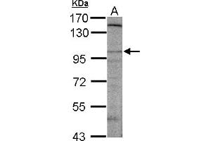 Image no. 1 for anti-Discs, Large (Drosophila) Homolog-Associated Protein 2 (DLGAP2) (AA 1-47) antibody (ABIN1502171)