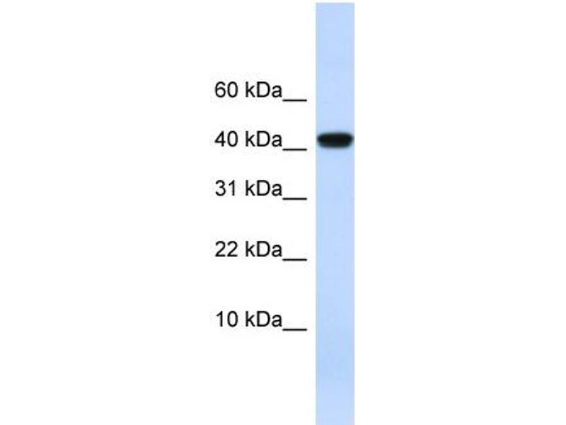 Western Blotting (WB) image for anti-Angiotensinogen (serpin Peptidase Inhibitor, Clade A, Member 8) (AGT) (N-Term) antibody (ABIN2781494)
