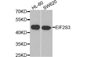 Image no. 1 for anti-Eukaryotic Translation Initiation Factor 2, Subunit 3 Gamma, 52kDa (EIF2S3) antibody (ABIN2562384)