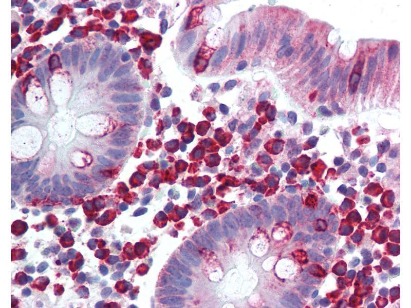 Immunohistochemistry (IHC) image for anti-Leukocyte Receptor tyrosine Kinase (LTK) (AA 800-864) antibody (ABIN292876)