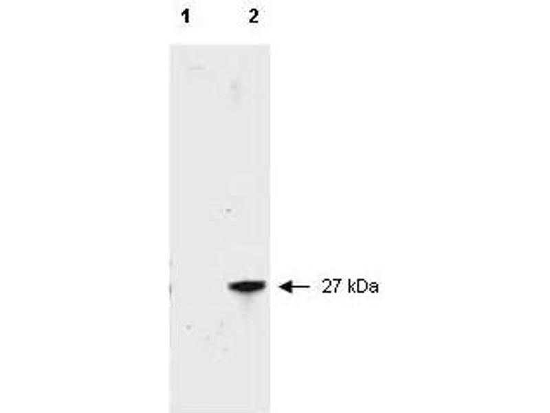 Image no. 8 for anti-Red Fluorescent Protein (RFP) antibody (ABIN129578)