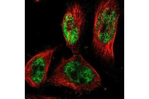 Immunofluorescence (IF) image for anti-PR Domain Containing 4 (PRDM4) antibody (ABIN4347211)