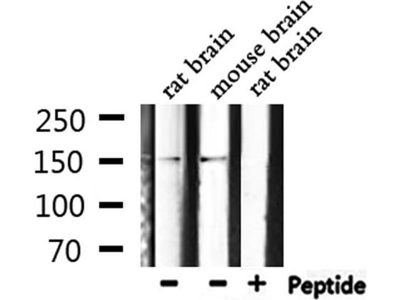 Western Blotting (WB) image for anti-phospholipase C, gamma 1 (PLCG1) (pTyr771) antibody (ABIN6256799)