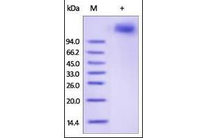 Image no. 1 for Vascular Cell Adhesion Molecule 1 (VCAM1) (AA 25-697) protein (His tag) (ABIN2181894)