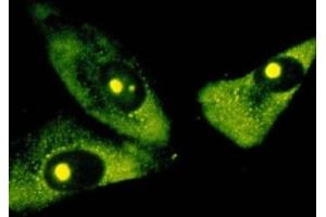 Immunofluorescence (IF) image for anti-RRNA anticorps (ABIN152086)