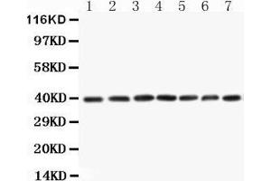 Image no. 1 for anti-Mitogen-Activated Protein Kinase Kinase 3 (MAP2K3) (AA 320-334), (C-Term) antibody (ABIN3044392)