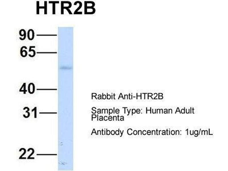 Western Blotting (WB) image for anti-Serotonin Receptor 2B antibody (HTR2B) (N-Term) (ABIN2779377)