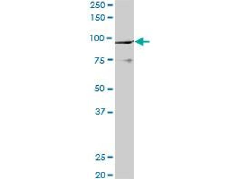 Western Blotting (WB) image for anti-K(lysine) Acetyltransferase 2B (KAT2B) (AA 353-452), (partial) antibody (ABIN522308)
