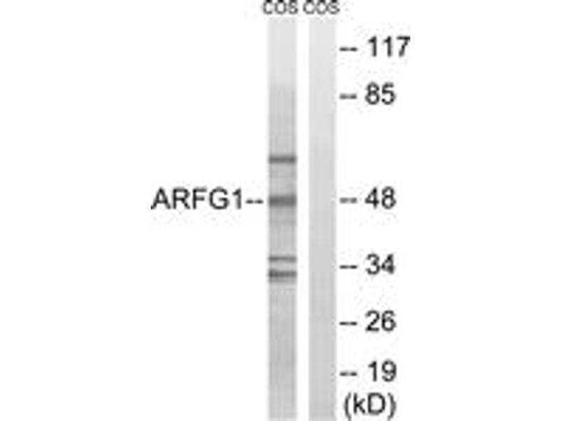 Western Blotting (WB) image for anti-ADP-Ribosylation Factor GTPase Activating Protein 1 (ARFGAP1) (AA 171-220) antibody (ABIN1534608)