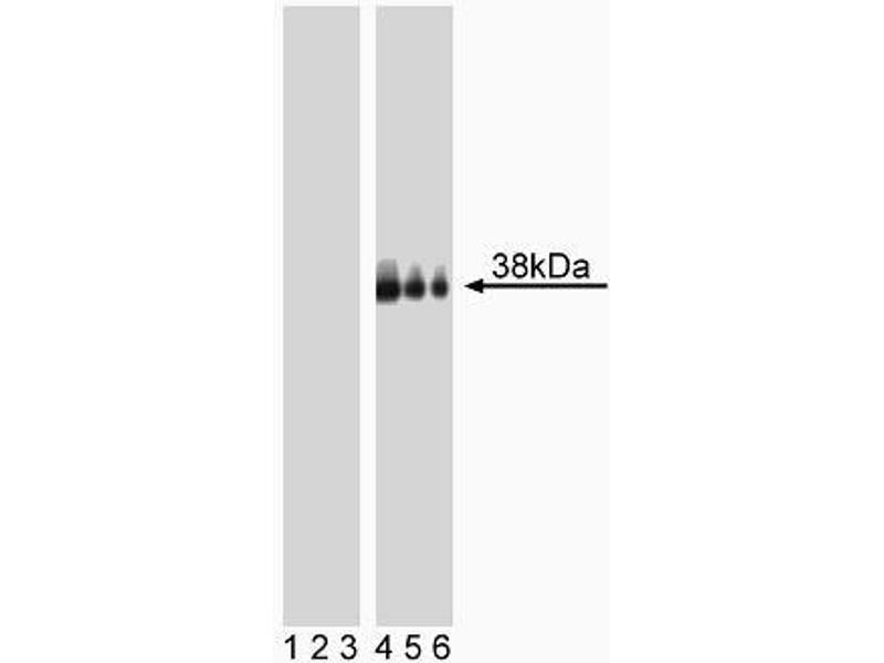 Western Blotting (WB) image for anti-LAT antibody (Linker For Activation of T Cells) (pTyr226) (ABIN967594)
