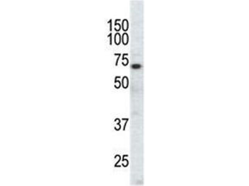 Western Blotting (WB) image for anti-EPH Receptor A3 (EPHA3) (AA 896-928) antibody (ABIN3030820)