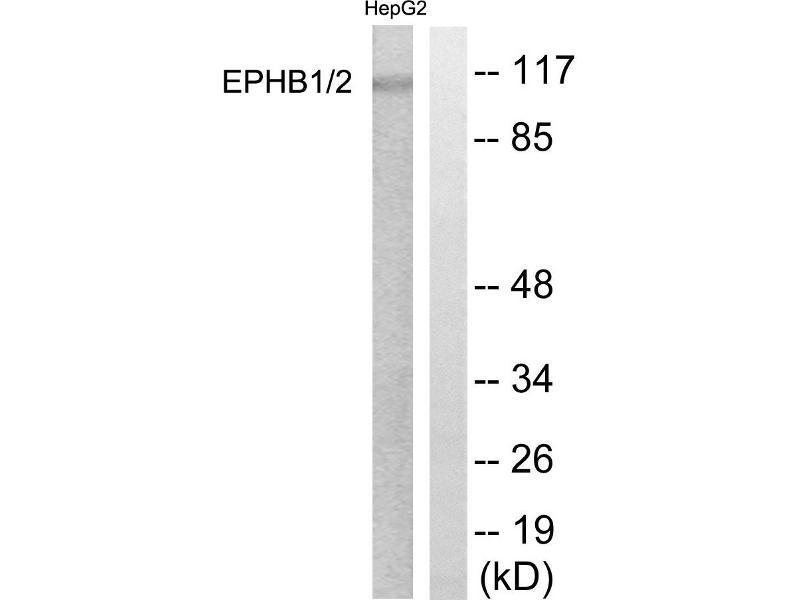 Western Blotting (WB) image for anti-EPH Receptor A2 antibody (EPHA2) (Tyr594) (ABIN2164637)