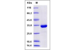 Image no. 1 for Sulfotransferase Family, Cytosolic, 1A, Phenol-Preferring, Member 3 (SULT1A3) (AA 2-295), (Mature) (Active) protein (His tag) (ABIN2004270)