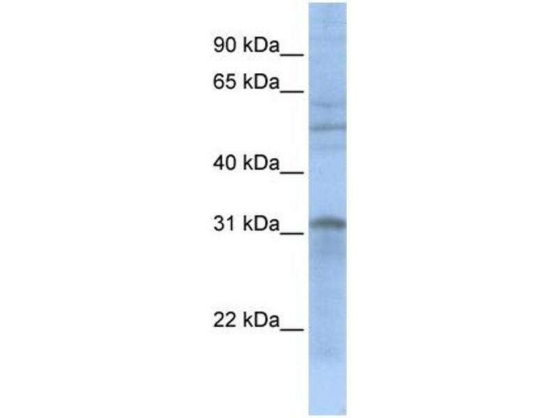 Western Blotting (WB) image for anti-Mitochondrial Carrier 2 (MTCH2) (N-Term) antibody (ABIN503633)