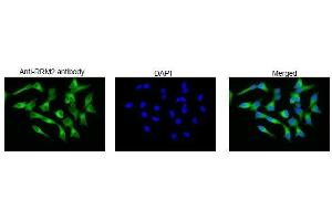 Image no. 3 for anti-Ribonucleotide Reductase M2 (RRM2) (C-Term) antibody (ABIN2452118)