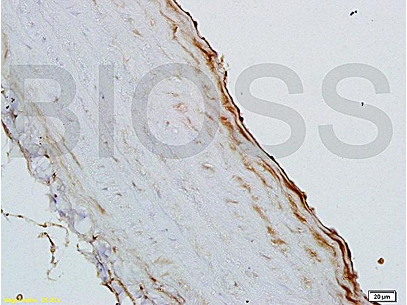 Immunohistochemistry (IHC) image for anti-CSF2 antibody (Colony Stimulating Factor 2 (Granulocyte-Macrophage)) (AA 105-119) (ABIN730723)