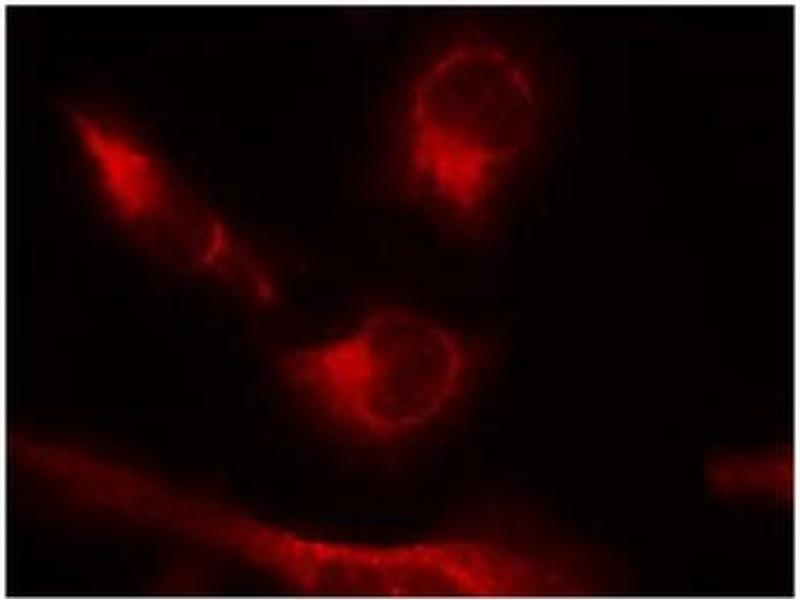 image for anti-MAPT antibody (Microtubule-Associated Protein tau) (pSer356) (ABIN319220)