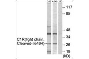 Western Blotting (WB) image for anti-Complement Component 1, R Subcomponent (C1R) (Internal Region) antibody (ABIN5611586)