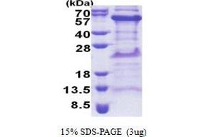 Image no. 1 for TIMELESS Interacting Protein (TIPIN) (AA 1-301) protein (His tag) (ABIN5853259)