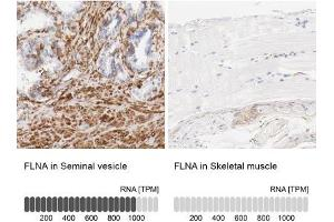 Immunohistochemistry (Paraffin-embedded Sections) (IHC (p)) image for anti-Filamin A, alpha (FLNA) antibody (ABIN4311942)