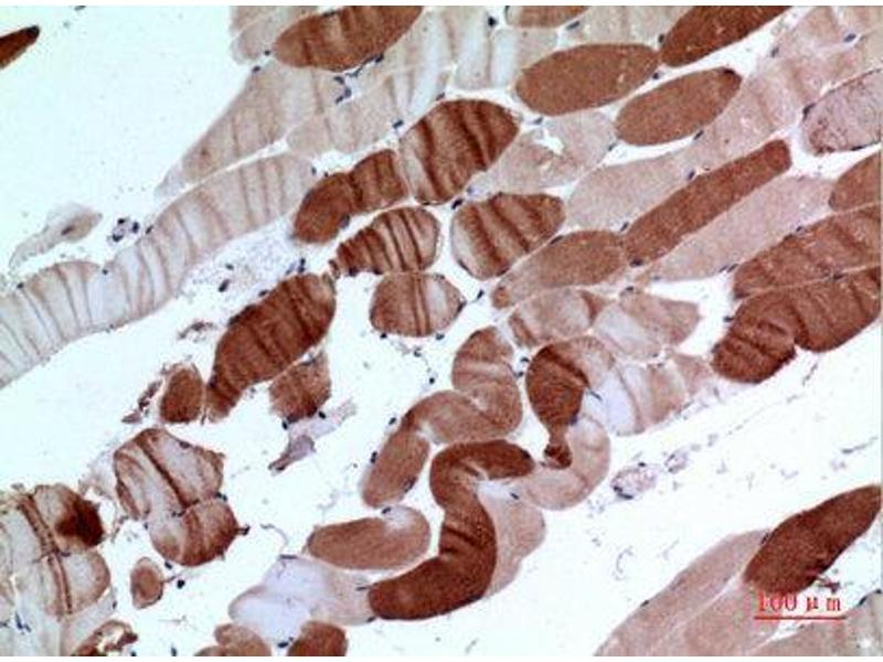 Immunohistochemistry (IHC) image for anti-ATPase, Ca++ Transporting, Cardiac Muscle, Slow Twitch 2 (ATP2A2) (C-Term) antibody (ABIN3187946)