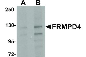 Image no. 1 for anti-FERM and PDZ Domain Containing 4 (FRMPD4) (Internal Region) antibody (ABIN6655536)
