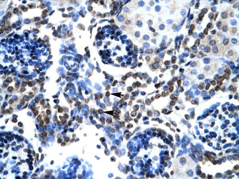 Immunohistochemistry (IHC) image for anti-BCL2-Associated X Protein (BAX) (N-Term) antibody (ABIN2792125)