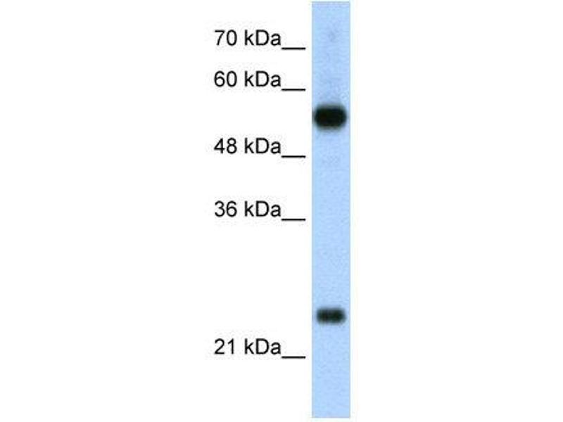 Western Blotting (WB) image for anti-Ribosomal Protein L13 (RPL13) (C-Term) antibody (ABIN310002)